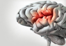 Día Mundial del Accidente Cerebrovascular – 29 de octubre